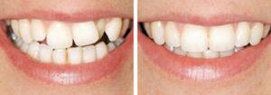 Tandregulering før/efter